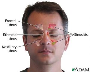 Sinusitis refers to inflammation of the sinus cavities, which are moist, hollow spaces in the bones of the skull. If the opening from a sinus cavity becomes plugged, the flow of mucus is blocked and pressure builds up, causing pain and inflammation.