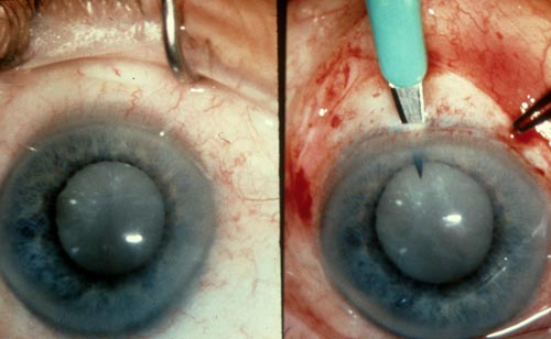 Cataract Surgery - Gnarly!