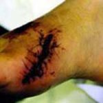 foot laceration